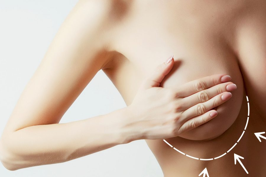 Korumalı: Breast Augmentation